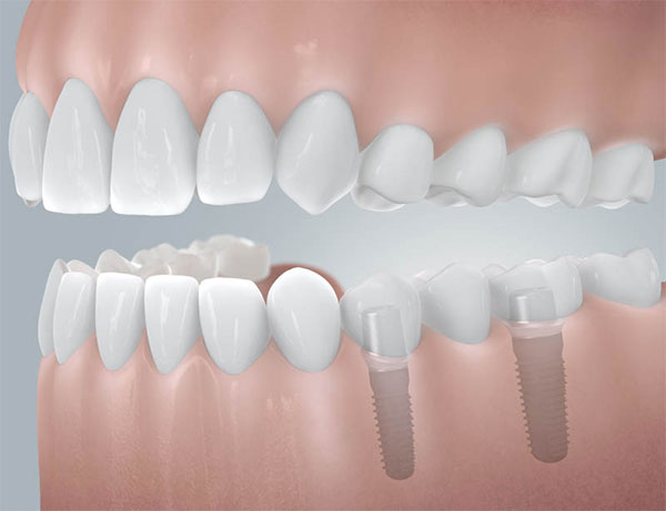Restauration sur implant