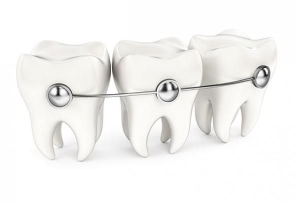 Ce qu'il faut savoir sur l'orthodontie